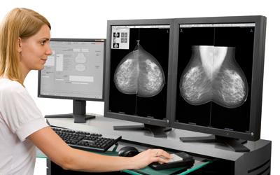 Mammography 검진법